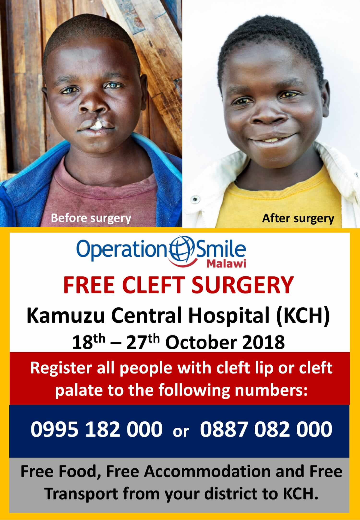 Operation Smile - Free Cleft Surgery fro...